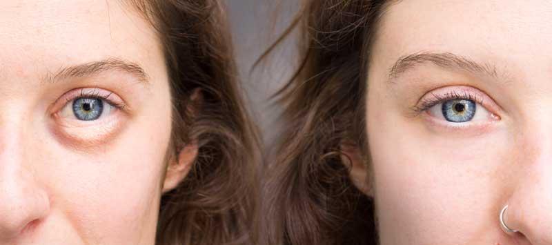 Wallen wegwerken met make-up