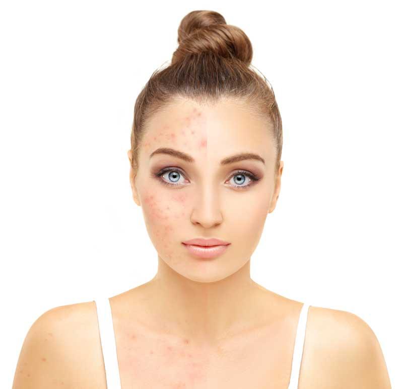 Rode vlekken in gezicht wegwerken met make-up